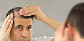 What Are The Elements That Decide Hair Transplant Cost in Delhi?
